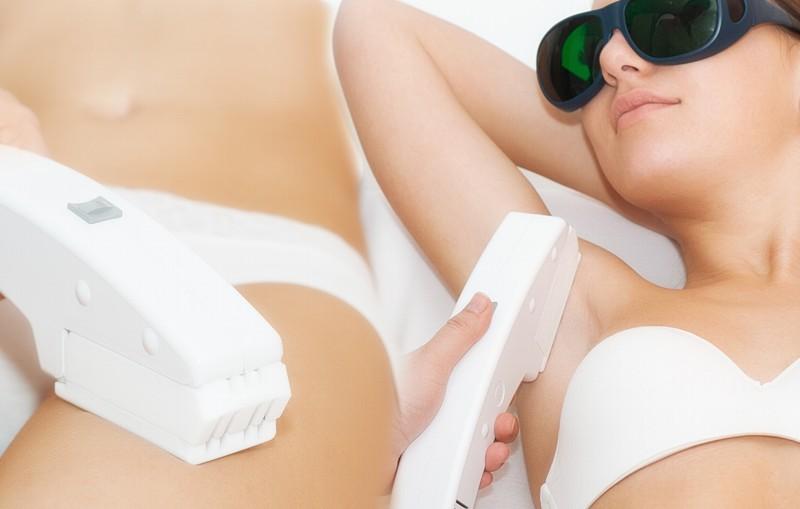 ¿Funciona la depilación definitiva?