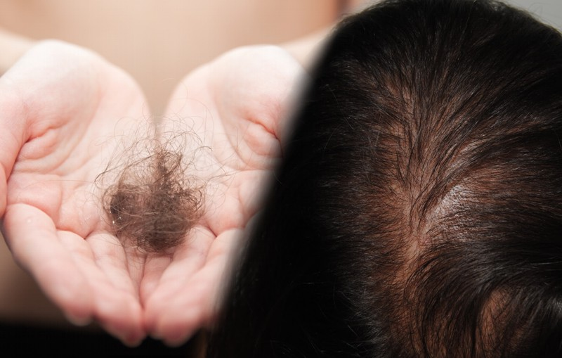 Caída del pelo en las mujeres